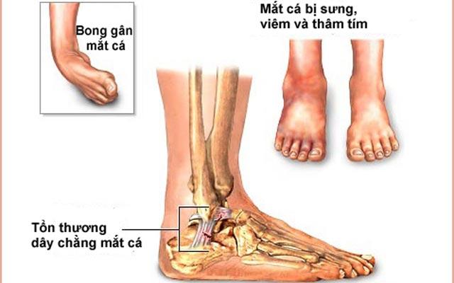 Chấn thương mắt cá chân và hướng dẫn đơn giản để khắc phục (phần 1)