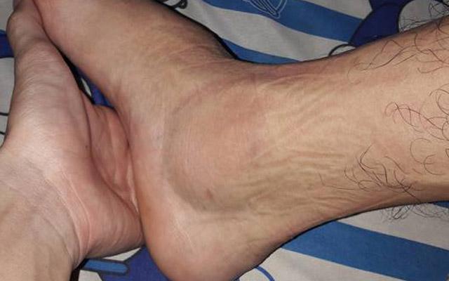 Chấn thương mắt cá chân và hướng dẫn đơn giản để khắc phục (phần 2)